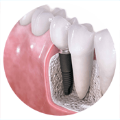 Treatments: Implant