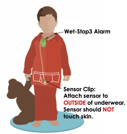 Wet-Stop3 Enuresis Alarm Proper Attachment