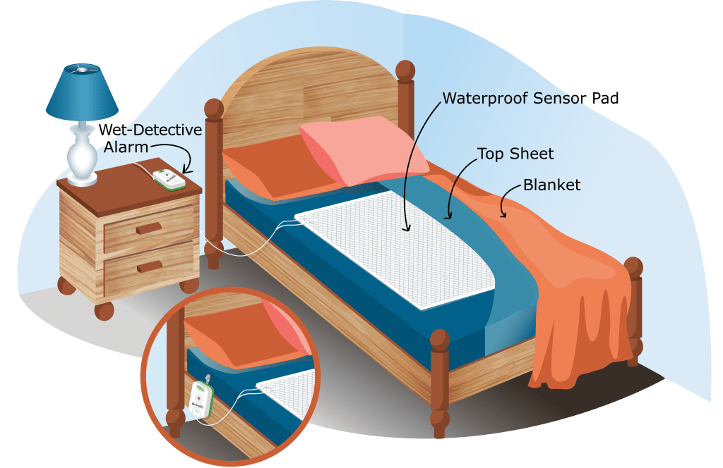 Wet-Detective bed pad alarm system - pictorial instructions for placement of components. Bed pad is placed on top of bedsheet; sensor cord is attached to bed pad and alarm unit. Alarm unit is placed near the head of the bed.
