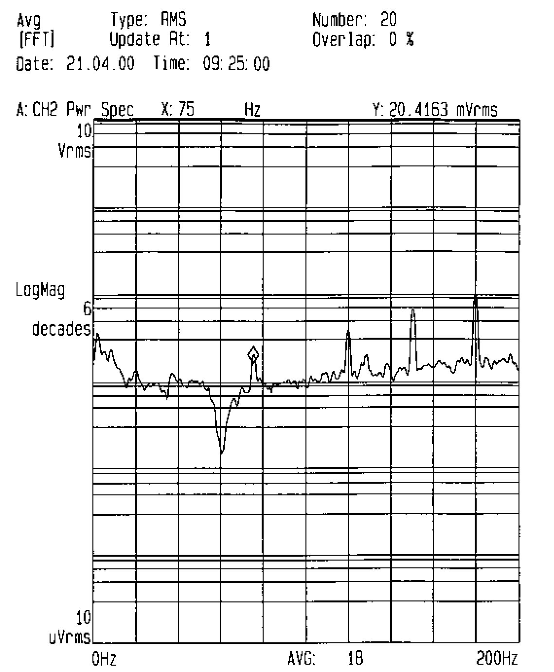 Functional Neurosurgery Using The Radionics Stereoplan System Stereotactic And Functional