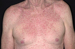 What Does Eczema Look Like / FrontPage