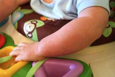 Puffy, Chubby Arm