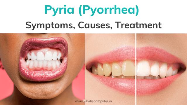 Pyria-Symptoms-and-Causes-of-Pyria-and-Home-Medicine-for-Pyria-Pyorrhea