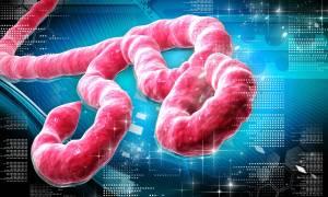 Polski naukowiec opracował najlepszy na świecie test na ebolę