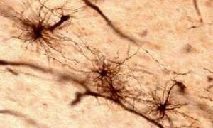 Ultradźwięki przepuszczą leki przez barierę krew-mózg