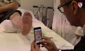 Aplikacja pomagająca w monitorowaniu ran cukrzycowych