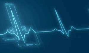 EKG wspierane przez SI wcześnie wykryje choroby serca