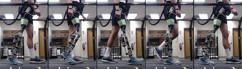 proteza nogi, proteza z SI, SI proteza, sztuczna noga