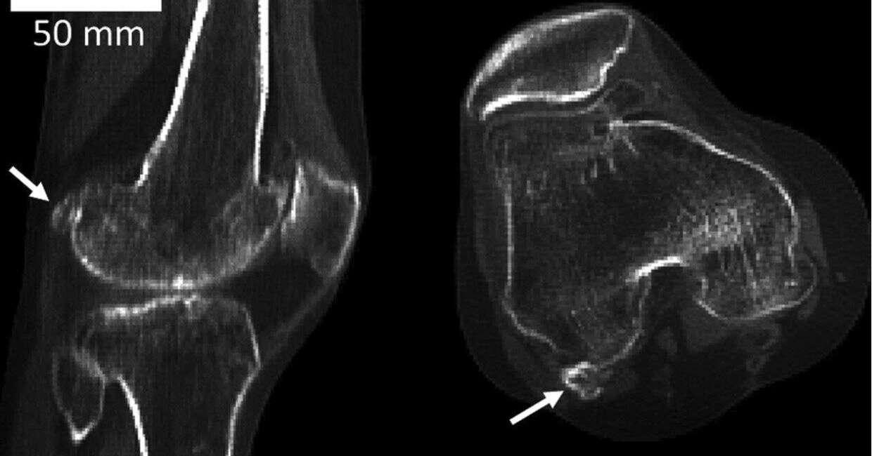 fabella, kość fabella, kość w kolanie, fabella kolano