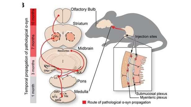 Parkinson, jelita, jelita parkinson, pochodzenie parkinsona, przyczyny parkinsona, alfa-synukleiny, białka parkinson, alfa-synukleiny parkinson