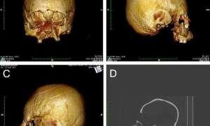 Na terenie Chorwacji znaleziono szkielety z głowami przypominającymi kosmitów