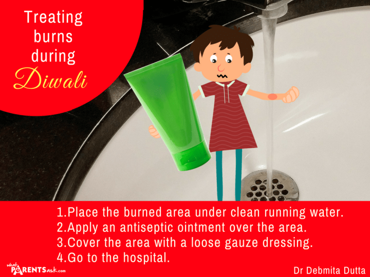 what to do for a burn during diwali