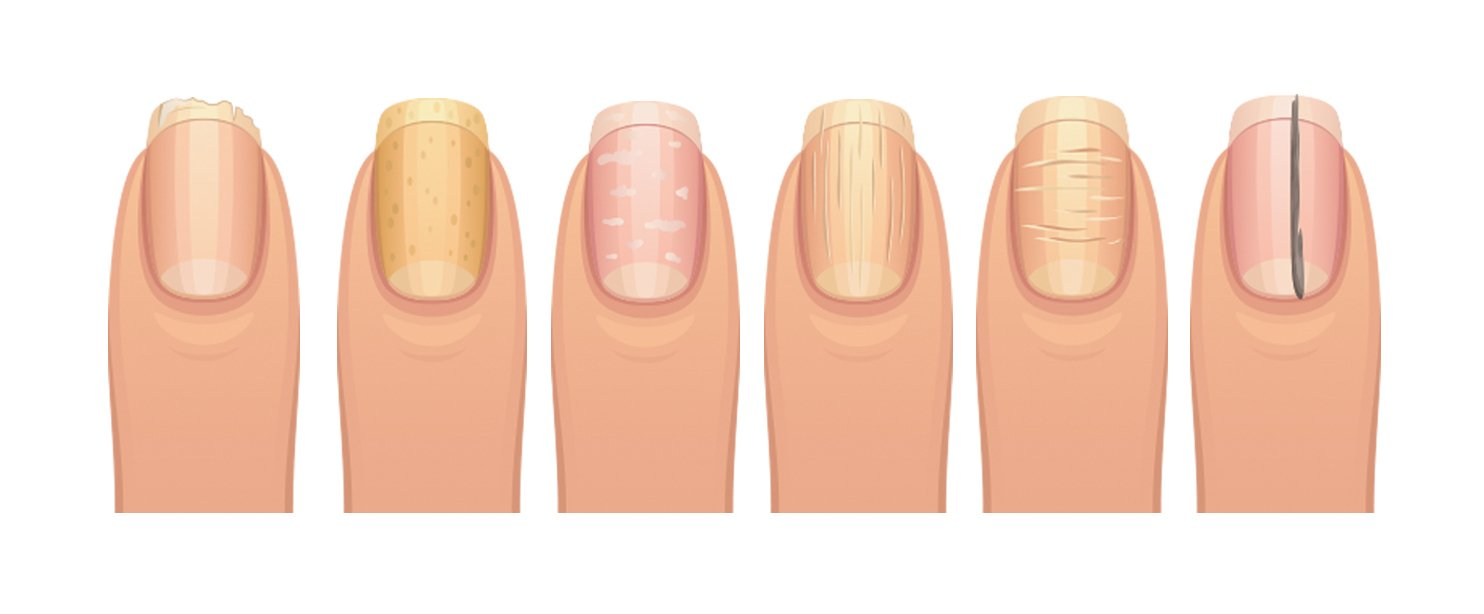 What Your Fingernails Say About Your Health | What\'s Good by V