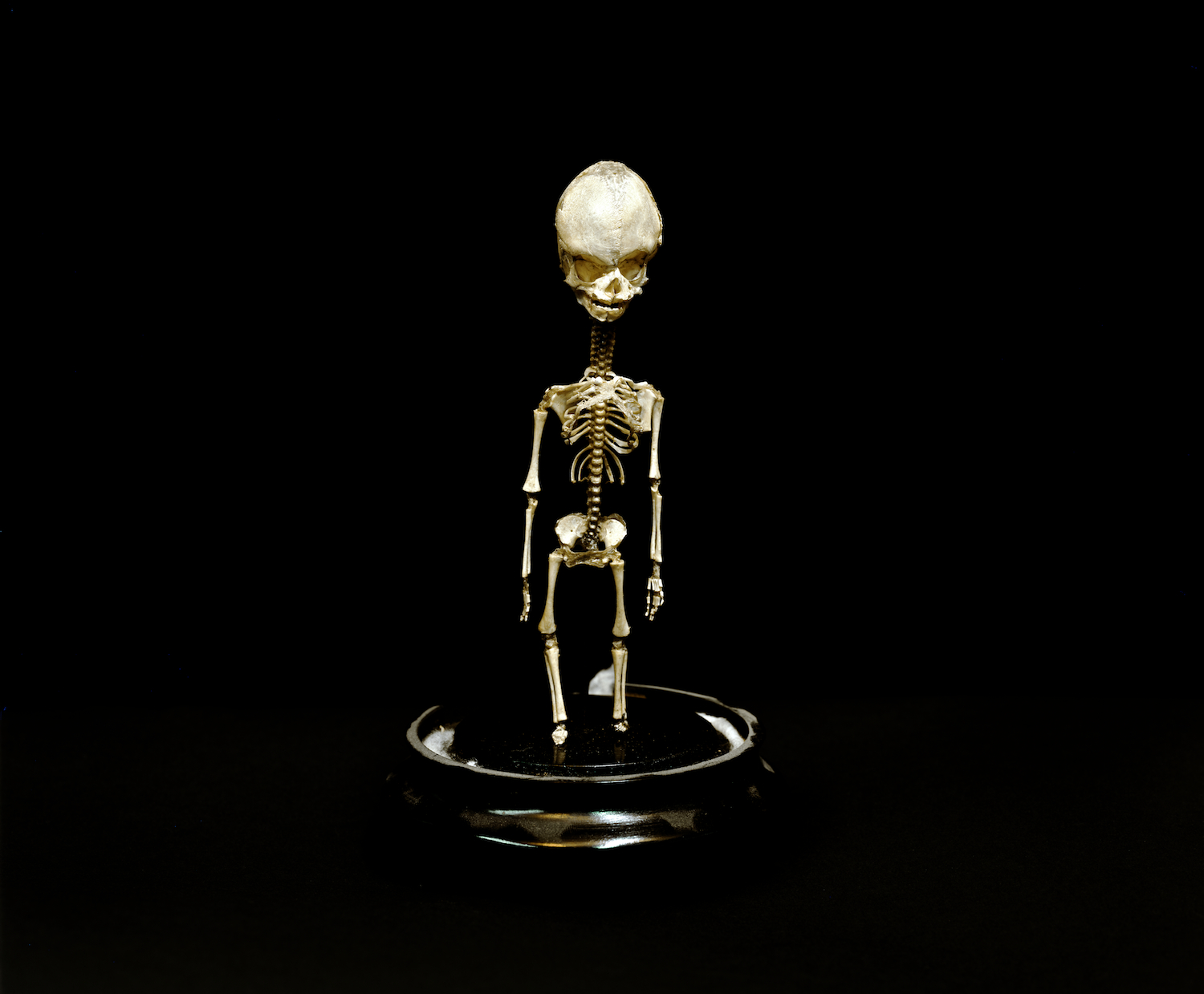 """Little Skeleton, Mutter Museum, 2004"" by Neal Rantoul (courtesy of the artist and 555 Gallery, Boston)"