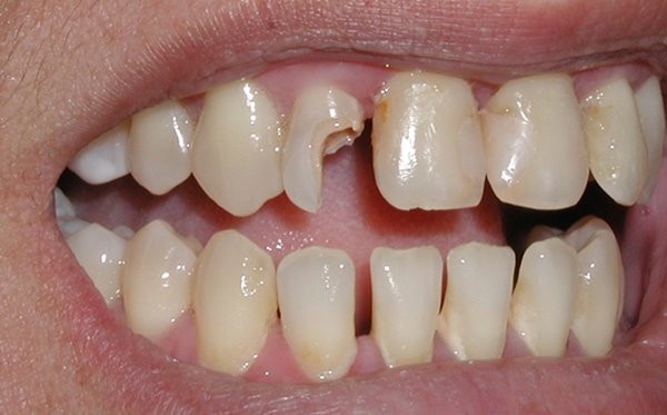 Immediate Effects of Foods on our Dental Health