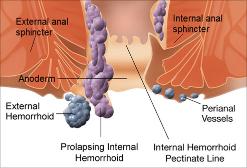Hemorrhoid Treatments