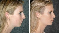 Why is Rhinoplasty So Common Nowadays?