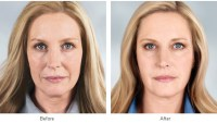 Thinking About a Face Lift? Here Are Five Things You'll Need