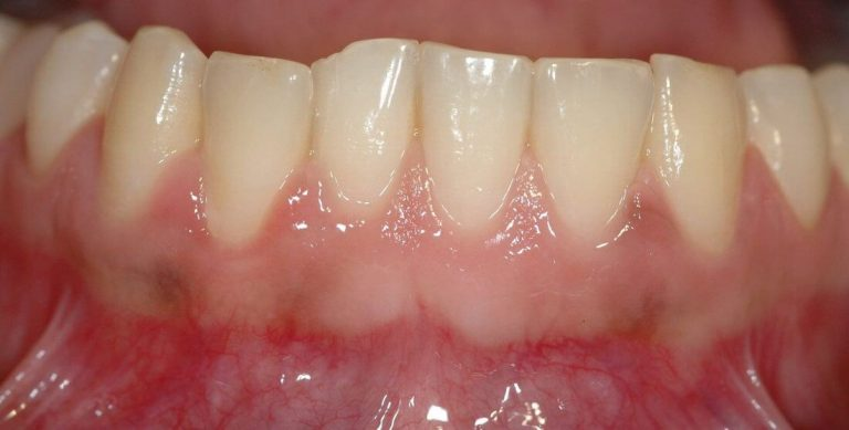 Dental care for your health