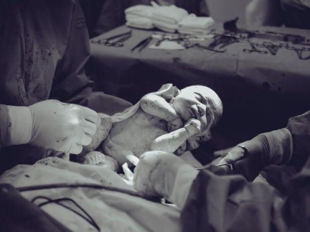 Common types of birth injuries to newborn