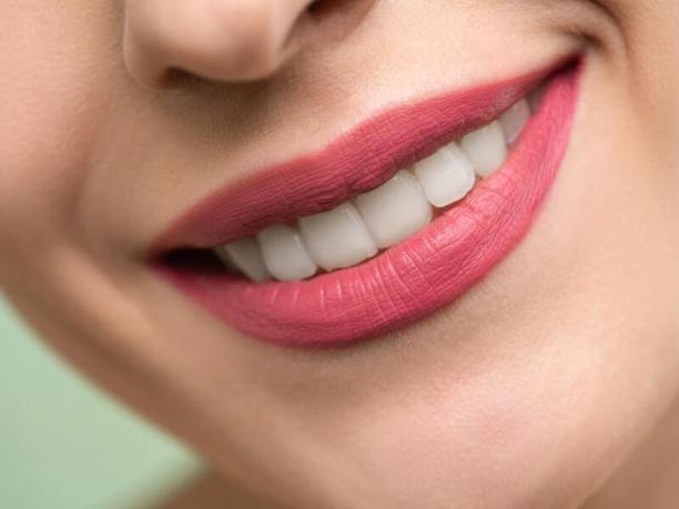 Perfectly white teeth