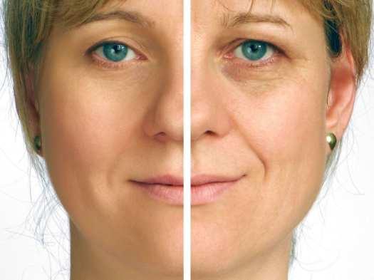 Tips for Choosing the Best Collagen