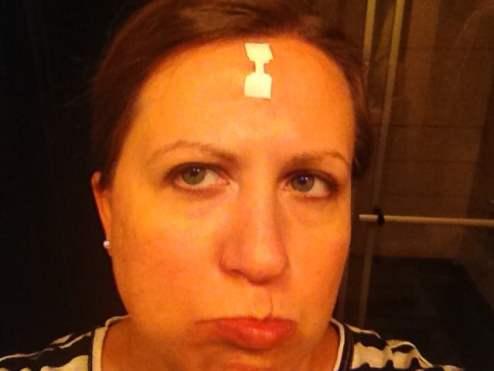 Liz - Peanuts or Pretzels Forehead Scar
