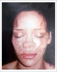 Rihanna-beaten