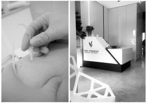 Karboksyterapia - jak wygląda zabieg, efekty, zdjęcia przed i po