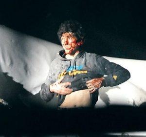 Dzhokar Tsarnaev surrenders. (Handout)