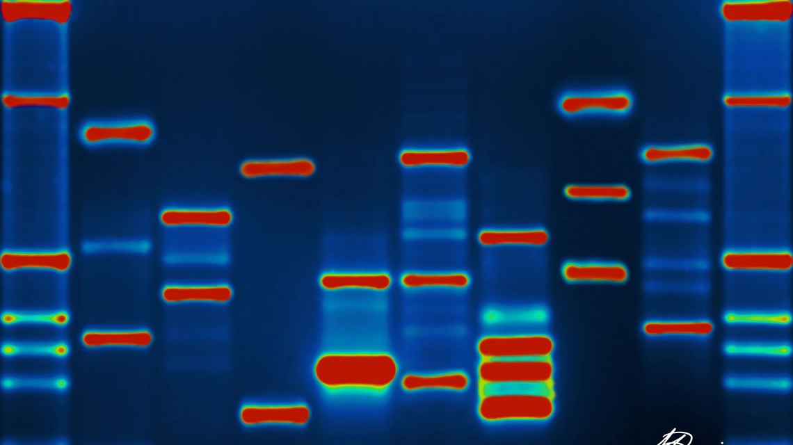 Who is it? Image of actual dna. Micah Baldwin / Flickr / CC BY-SA 2.0)