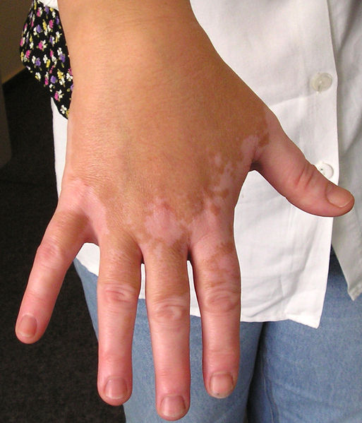 Lupus Skin Discoloration