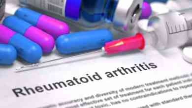 Photo of Natural Treatment for Rheumatoid Arthritis – Causes – Exercise & Supplements