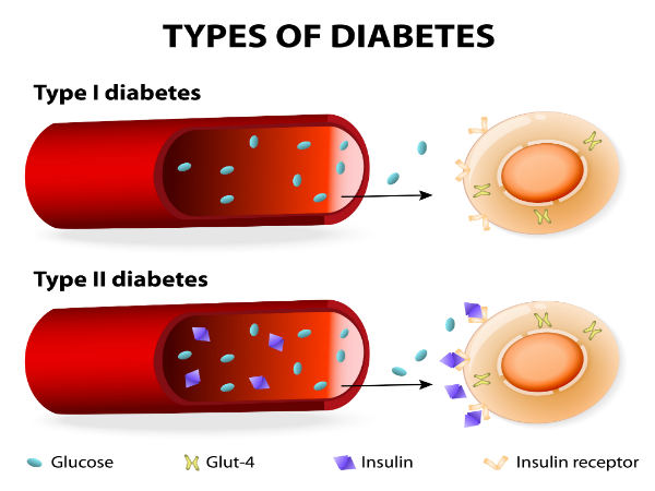Diabetes Type II - Obesity