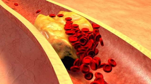 Decrease Cholesterol