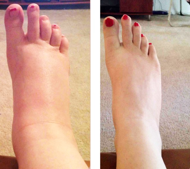 Elbow and Feet Swelling