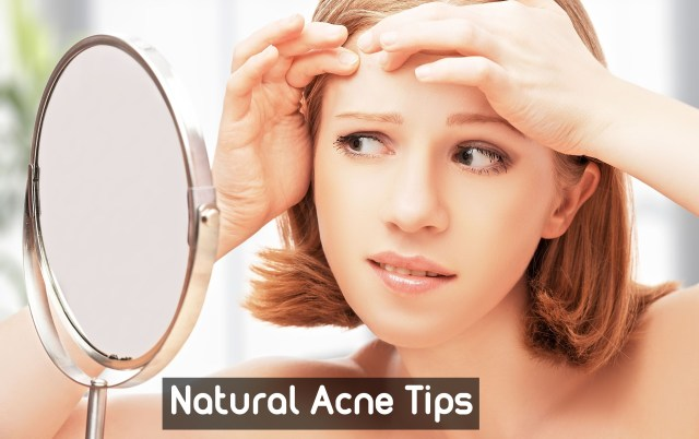 natural-acne-tips