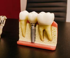 Common Misconceptions About Dental Implants