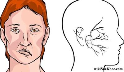 Bệnh Liệt Bell: Khái niệm, nguyên nhân, triệu chứng,điều trị và cách phòng ngừa