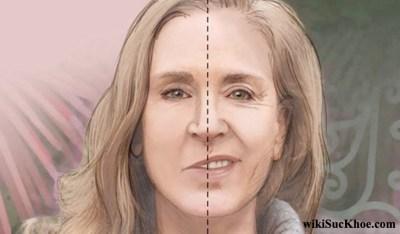 Bệnh liệt mặt: Khái niệm, nguyên nhân, triệu chứng, cách điều trị và phòng ngừa