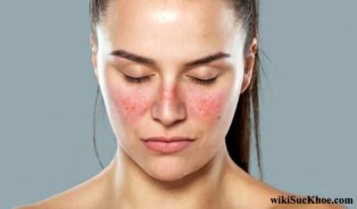 Bệnh lupus ban đỏ: Khái niệm, nguyên nhân, biểu hiện, cách điều trị, phòng ngừa