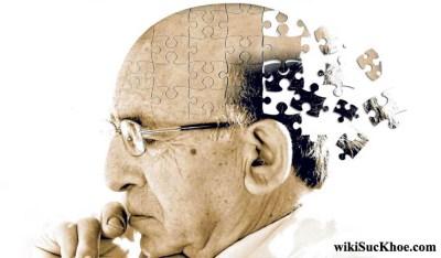 Bệnh mất trí nhớ: Khái niệm, nguyên nhân, triệu chứng, điều trị và cách ngăn ngừa