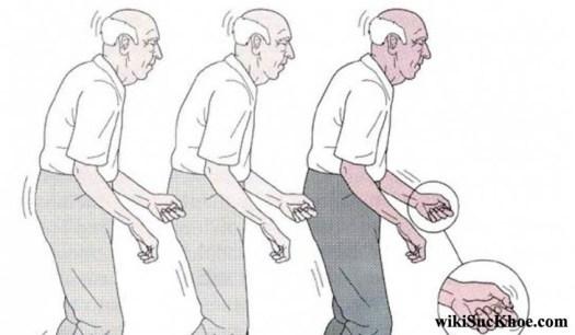Hội chứng bệnh parkinson