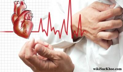 Bệnh tim mạch: Khái niệm, nguyên nhân, triệu chứng và cách phòng ngừa