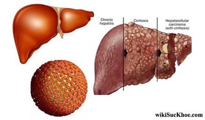 Bệnh viêm gan siêu vi B: Khái niệm, nguyên nhân, triệu chứng, phòng ngừa