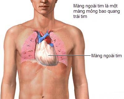Bệnh viêm màng ngoài tim