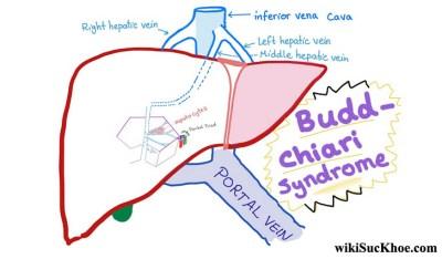Hội chứng Budd – Chiari: Khái niệm, nguyên nhân, biểu hiện,điều trị và cách phòng ngừa