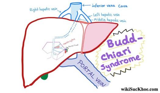 Hội chứng Budd – Chiari chủ yếu xảy ra ở người lớn