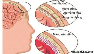 Bệnh viêm màng não do tụ cầu: Khái niệm, nguyên nhân, triệu chứng,điều trị và cách phòng ngừa