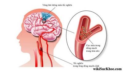 Bệnh xơ vữa động mạch: Khái niệm, nguyên nhân, triệu chứng, điều trị và cách phòng ngừa